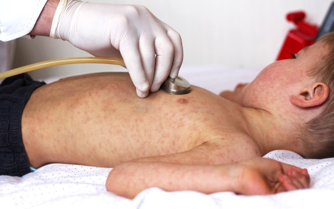 Quais os sintomas do sarampo? Como é a transmissão? Saiba tudo sobre a doença